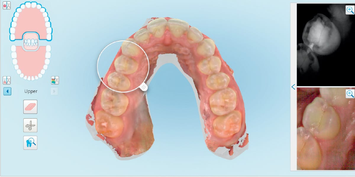 Itero 5d Tooth Imaging Photo