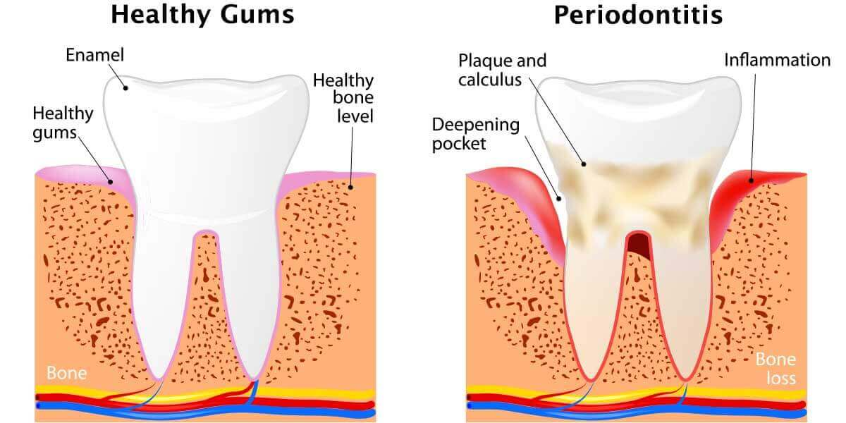 Healthy gums vs periodontitis graphic