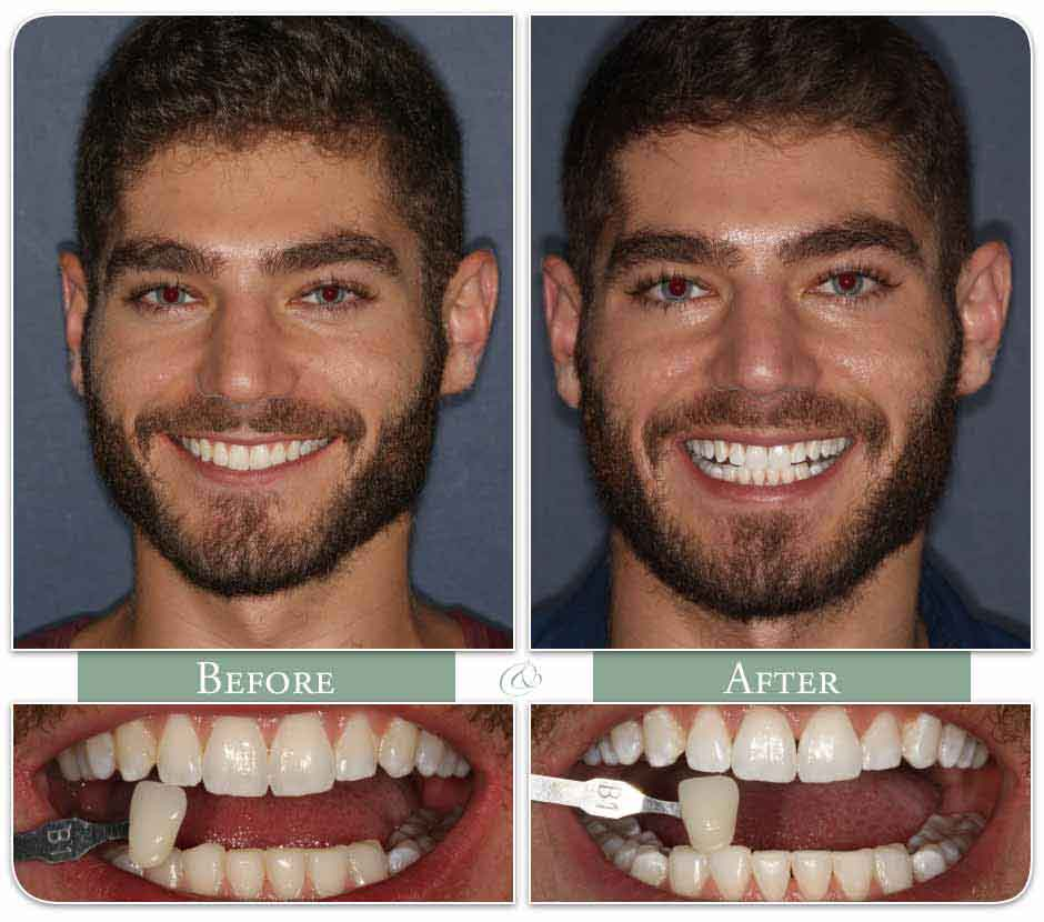 Teeth Whitening Gallery Glassman Dental Care Uws Nyc